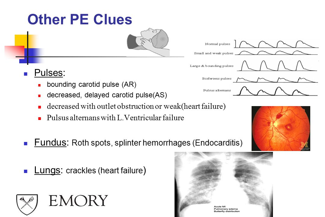 Other PE Clues Pulses: bounding carotid pulse (AR) decreased, delayed carotid pulse(AS) decreased with outlet obstruction or weak(heart failure)
