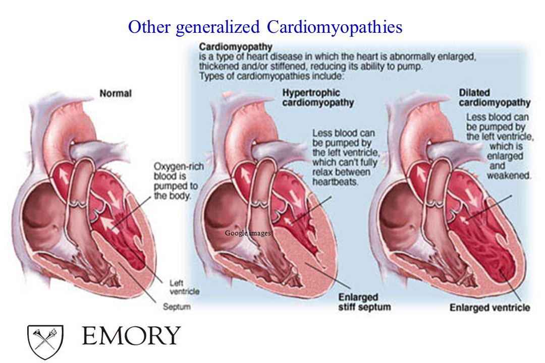 Other generalized Cardiomyopathies