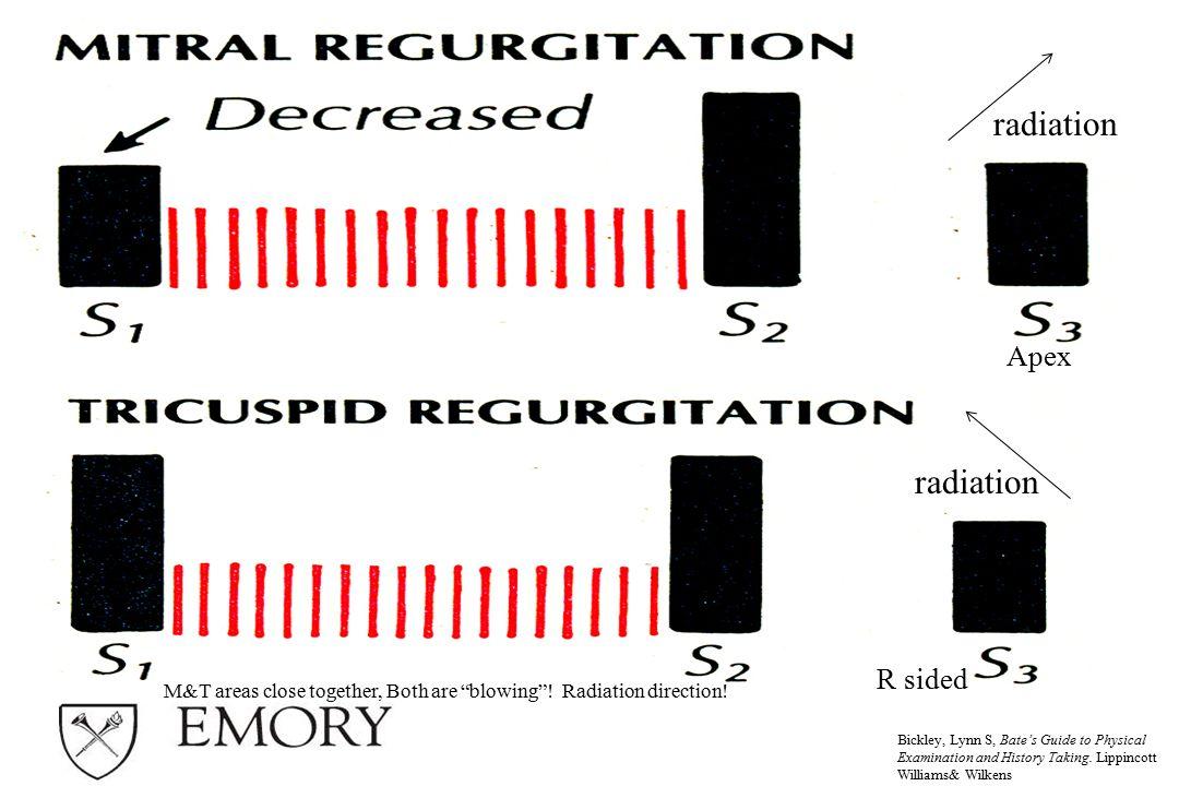 radiation radiation Apex R sided