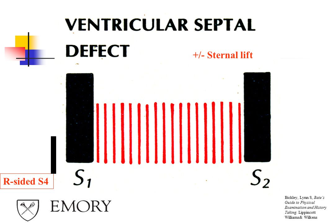 +/- Sternal lift R-sided S4 Ventricular Septal Defect classically: