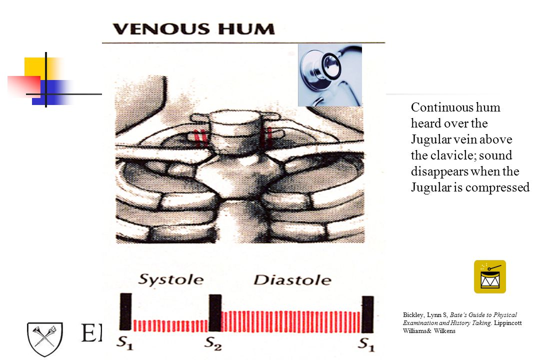 Continuous hum heard over the Jugular vein above the clavicle; sound disappears when the Jugular is compressed