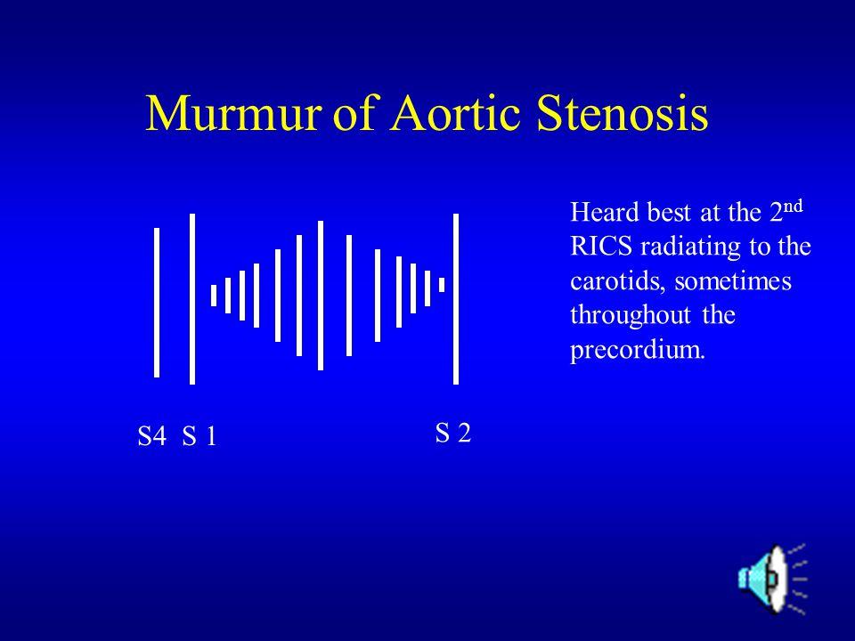 Murmur of Aortic Stenosis