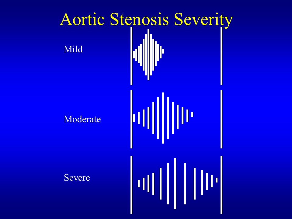 Aortic Stenosis Severity