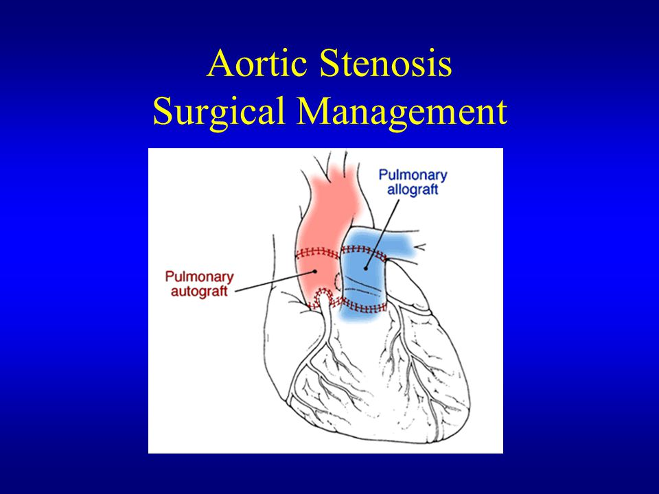 Aortic Stenosis Surgical Management