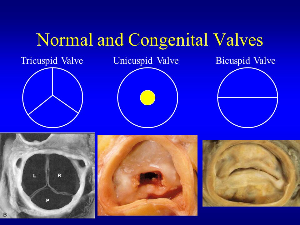 Normal and Congenital Valves