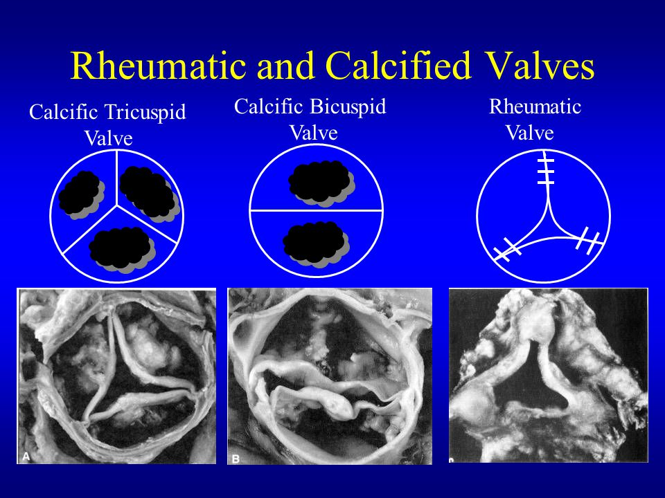 Rheumatic and Calcified Valves
