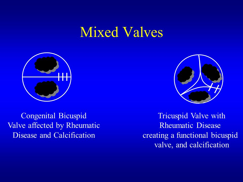Mixed Valves Congenital Bicuspid Valve affected by Rheumatic