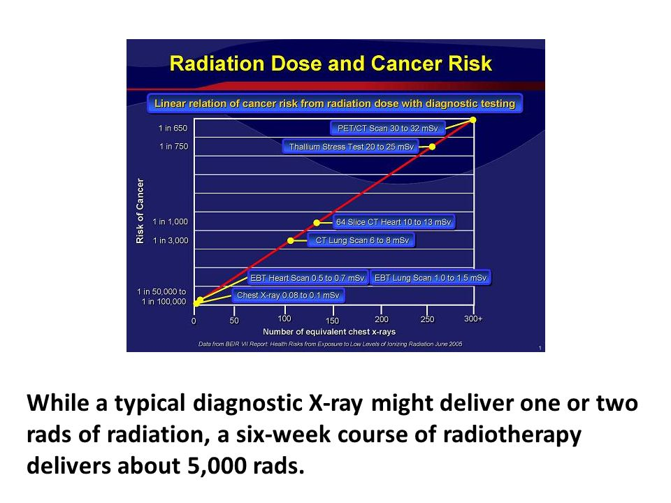 While a typical diagnostic X-ray might deliver one or two rads of radiation, a six-week course of radiotherapy delivers about 5,000 rads. While dead cells don't themselves become cancerous, there is invariably extensive damage to cells in adjacent tissues and organs, which can then become cancerous. The cancer danger in radiotherapy is at the edge of the beam, where you can't control it.