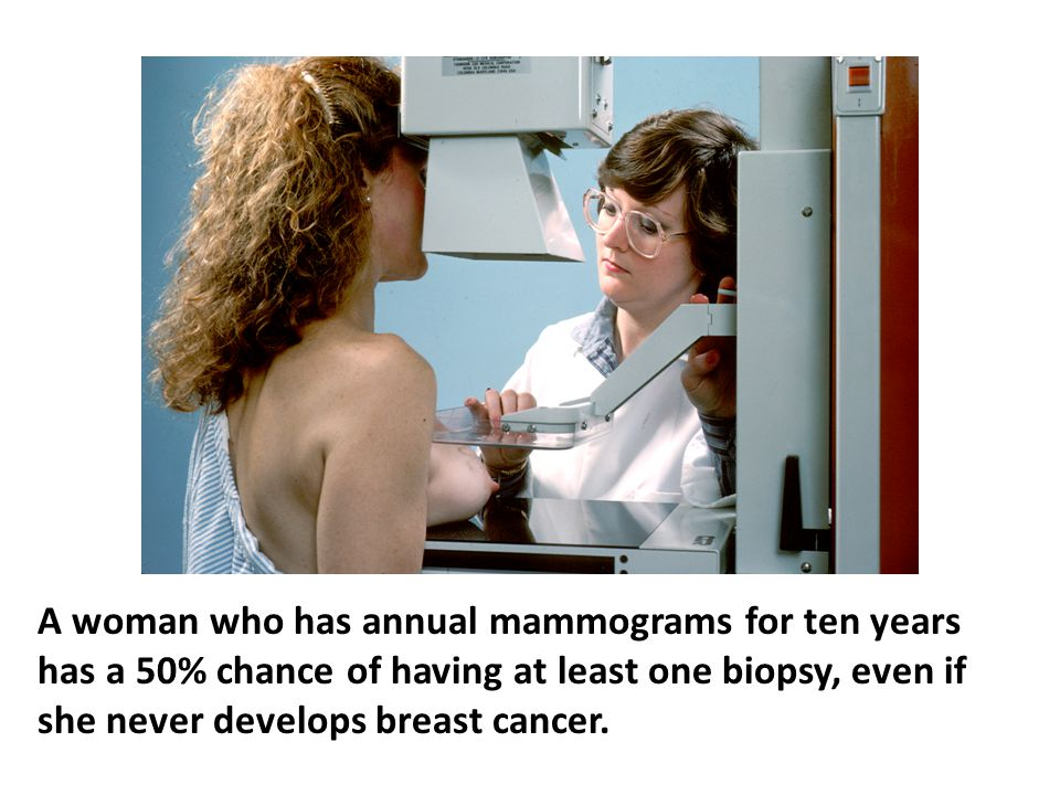A 1998 edition of the Merck Manual indicates that a woman who has annual mammograms for ten years has a 50% chance of having at least one biopsy, even if she never develops breast cancer. At $100 per mammogram times 62 million American women over age 40 added to $1000 per biopsy for one to two million women generates a hefty eight billion dollars annually. What industry would want to deny their stockholders a share of this lucrative market