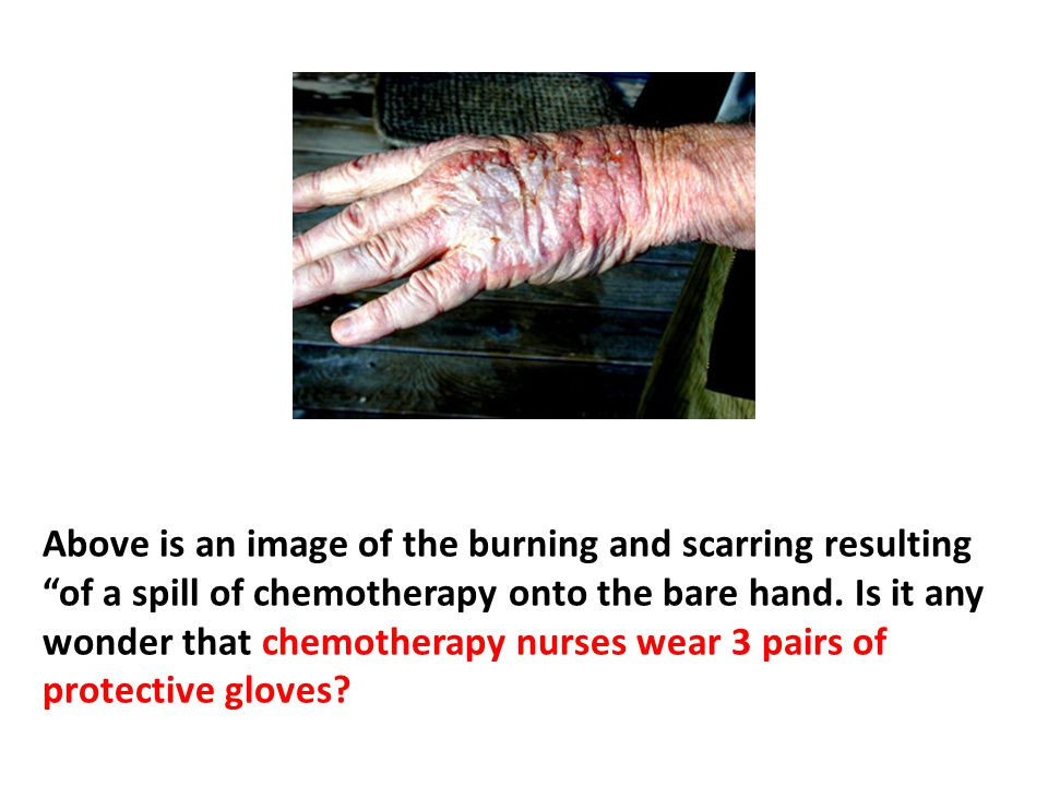 Above is a reduced-size rendering of the burning and scarring resulting of a spill of chemotherapy onto the bare hand. Is it any wonder that people are worried about what might be happening to their insides as chemotherapy is intravenously fed into the body Is it any wonder that chemotherapy nurses wear 3 pairs of protective gloves