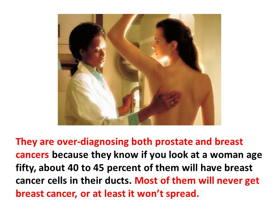 They are over-diagnosing both prostate and breast cancers because they know if you look at a woman age fifty, about 40 to 45 percent of them will have breast cancer cells in their ducts. Most of them will never get breast cancer, or at least it won't spread.