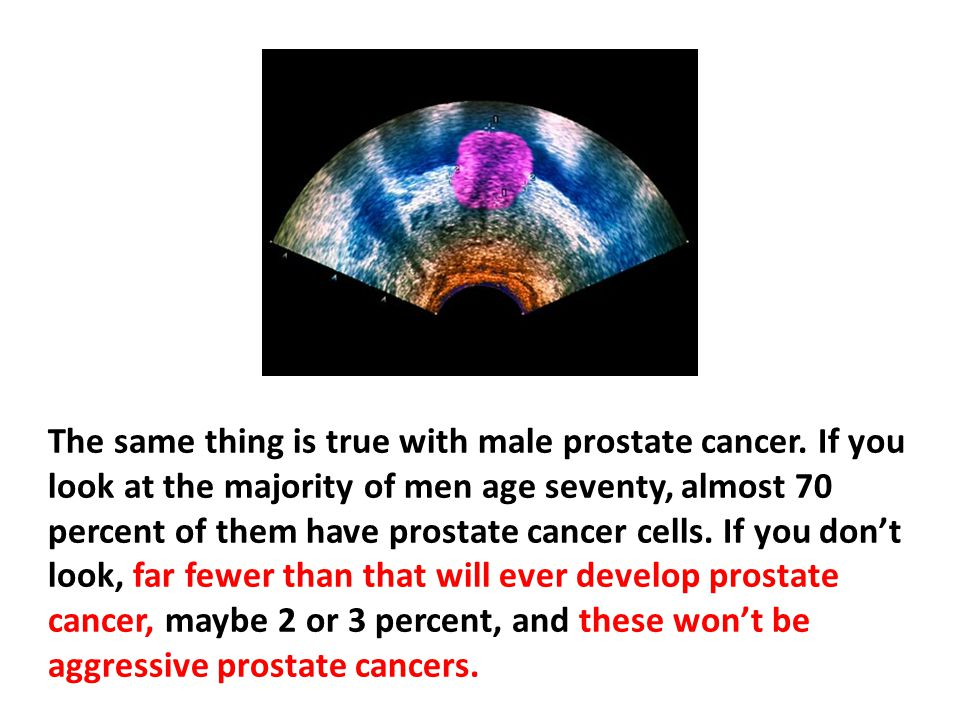 The same thing is true with male prostate cancer
