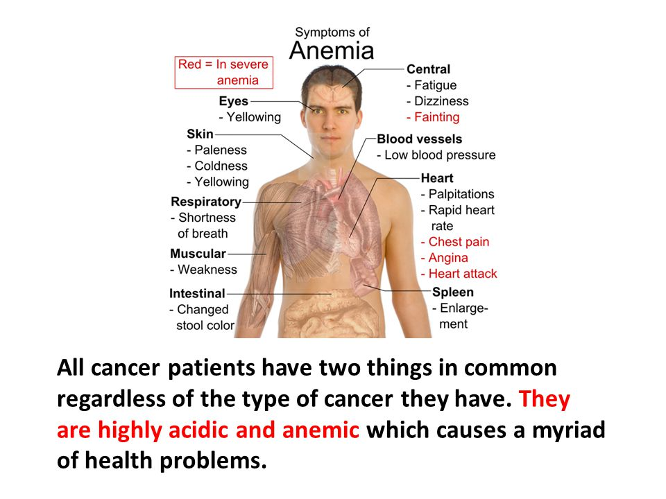 All cancer patients have two things in common regardless of the type of cancer they have. They are highly acidic and anemic which causes a myriad of health problems.
