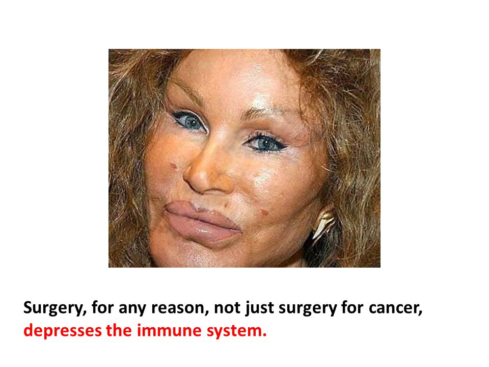 Surgery, for any reason, not just surgery for cancer, depresses the immune system.