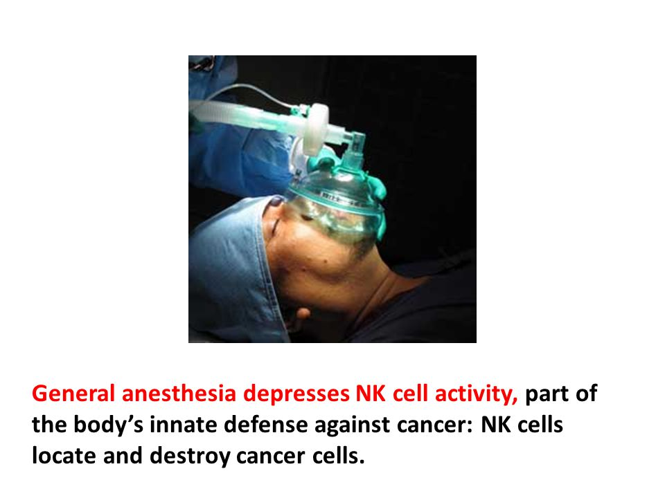 General anesthesia depresses NK cell activity, part of the body's innate defense against cancer: NK cells locate and destroy cancer cells.