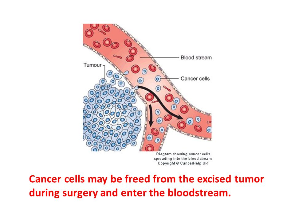 Cancer cells may be freed from the excised tumor during surgery and enter the bloodstream.