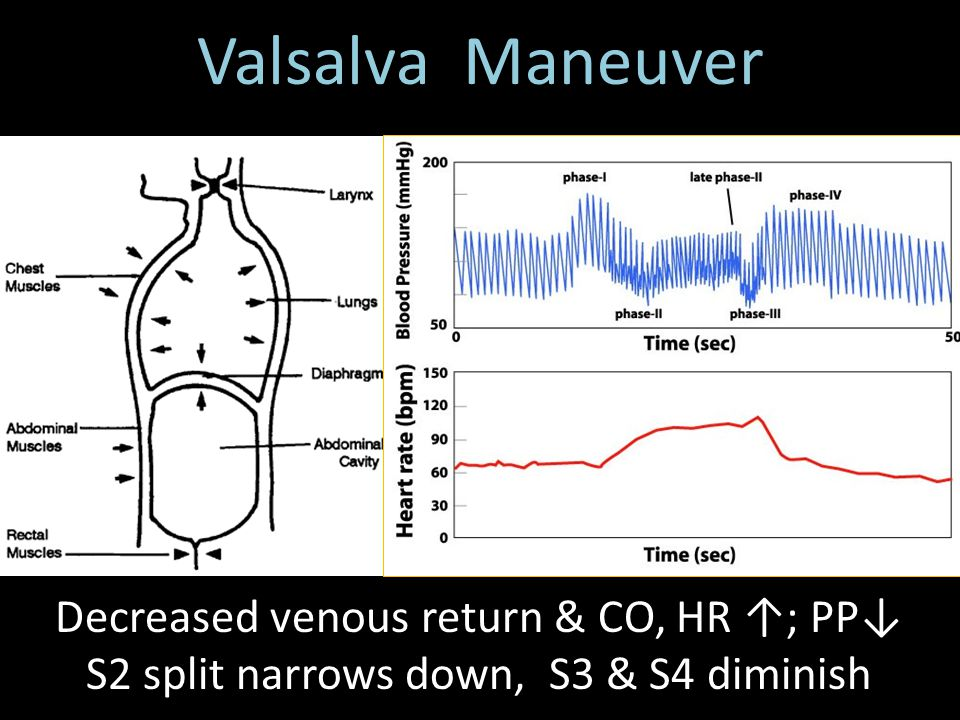 Valsalva Maneuver S2 split narrows down, S3 & S4 diminish
