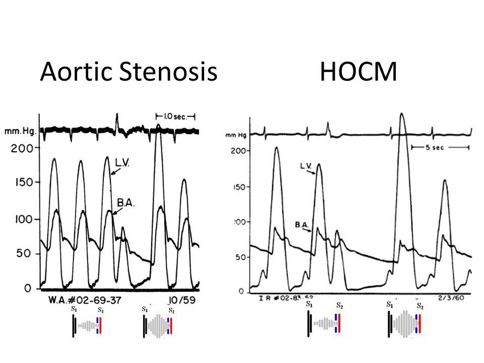 Aortic Stenosis HOCM