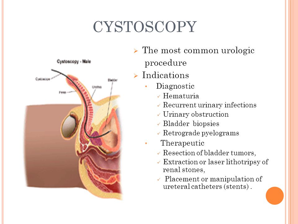 CYSTOSCOPY The most common urologic procedure Indications Diagnostic