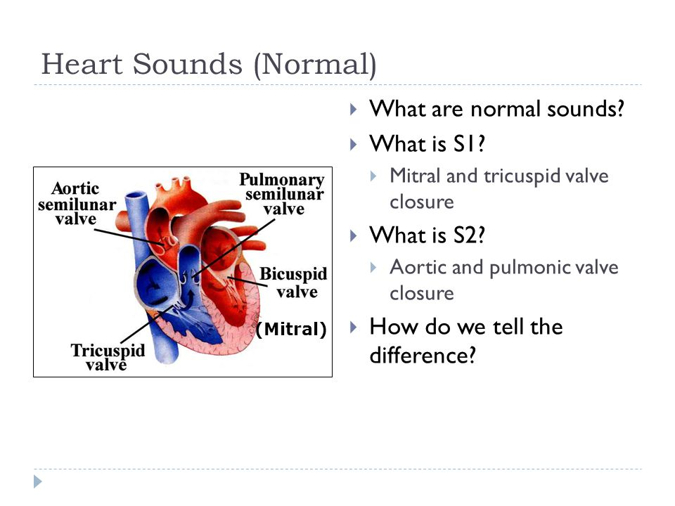 Heart Sounds (Normal) What are normal sounds What is S1 What is S2
