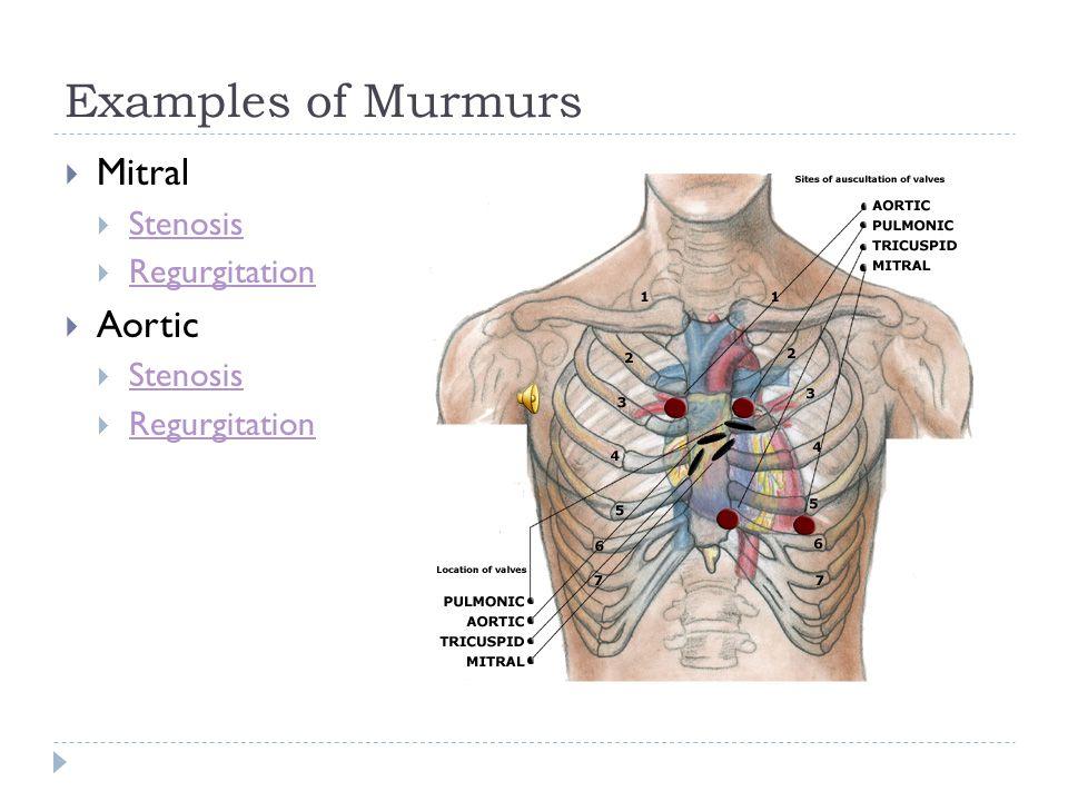 Examples of Murmurs Mitral Stenosis Regurgitation Aortic