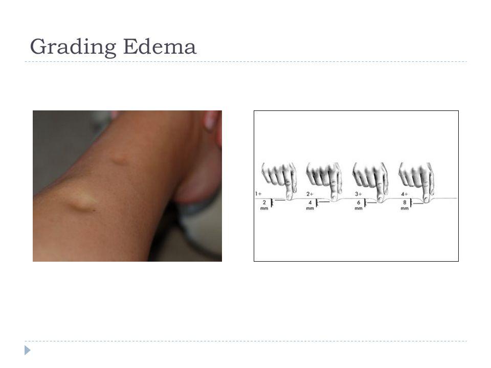 Grading Edema