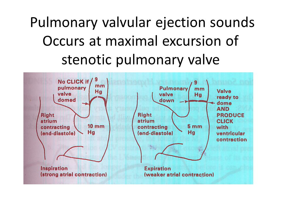 Pulmonary valvular ejection sounds Occurs at maximal excursion of stenotic pulmonary valve