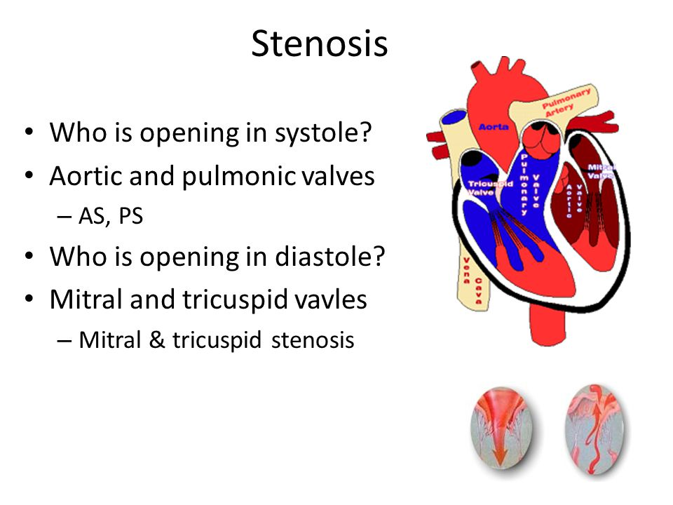 Stenosis Who is opening in systole Aortic and pulmonic valves