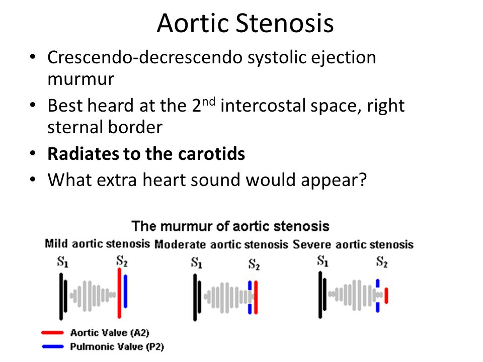 Aortic Stenosis Crescendo-decrescendo systolic ejection murmur