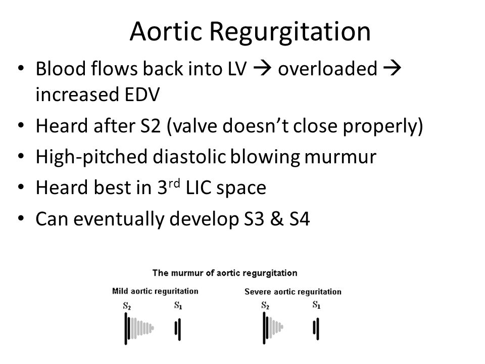 Aortic Regurgitation Blood flows back into LV  overloaded  increased EDV. Heard after S2 (valve doesn't close properly)