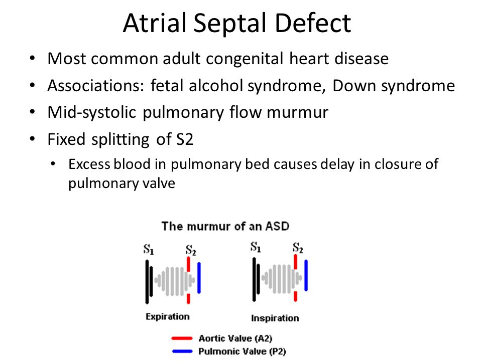 Atrial Septal Defect Most common adult congenital heart disease