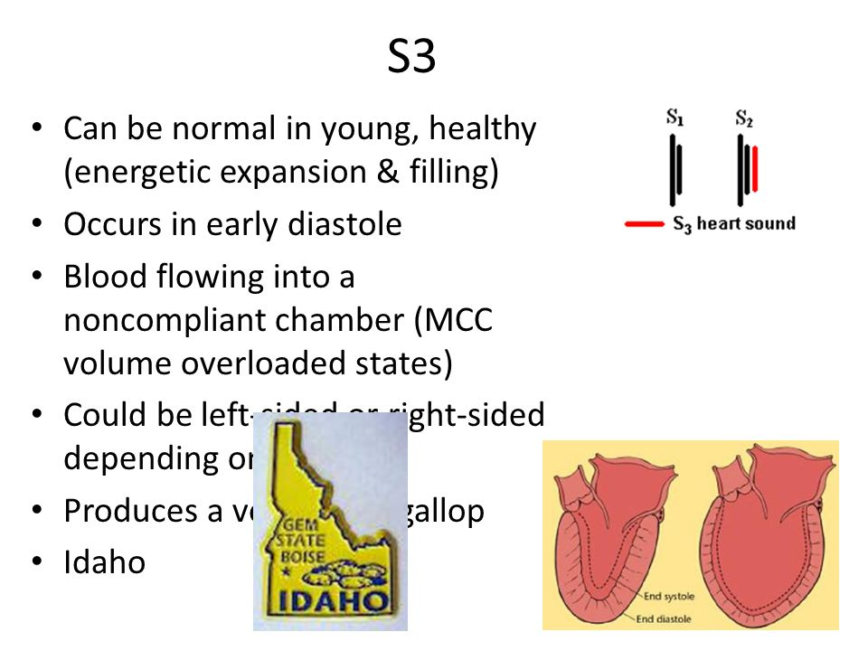 S3 Can be normal in young, healthy (energetic expansion & filling)