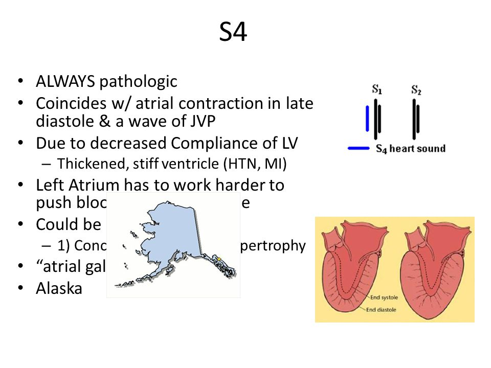 S4 ALWAYS pathologic. Coincides w/ atrial contraction in late diastole & a wave of JVP. Due to decreased Compliance of LV.
