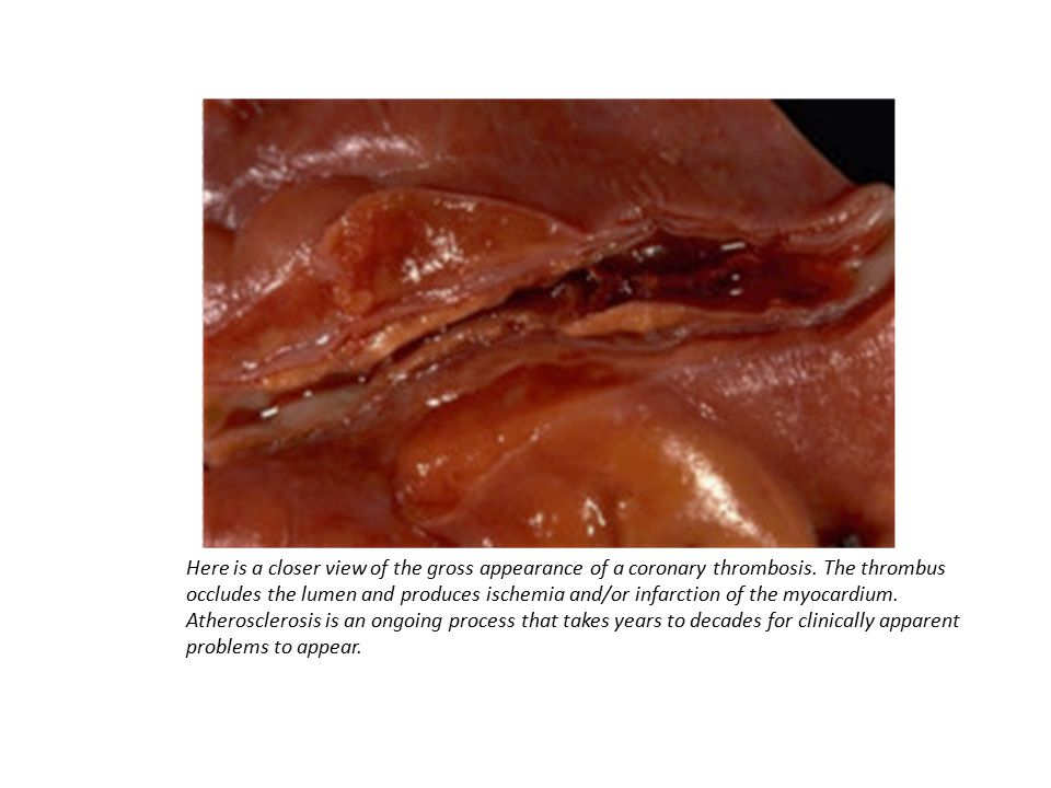 Here is a closer view of the gross appearance of a coronary thrombosis