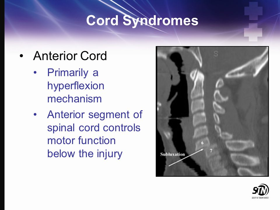 7_Spinal Column and Spinal Cord Injuries