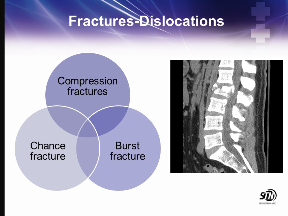 Fractures-Dislocations