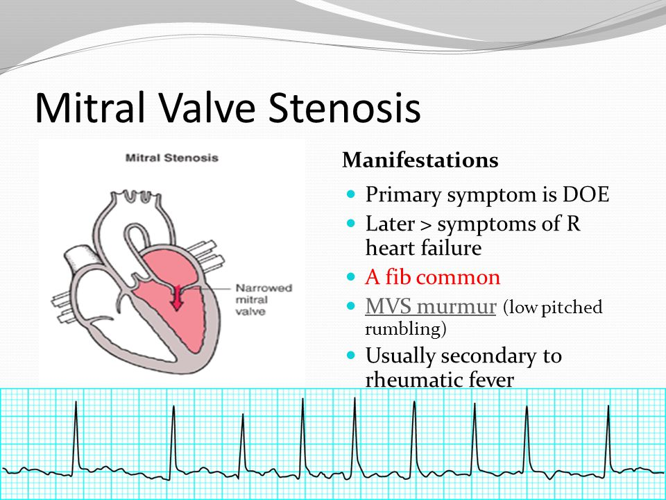 Mitral Valve Stenosis Manifestations Primary symptom is DOE