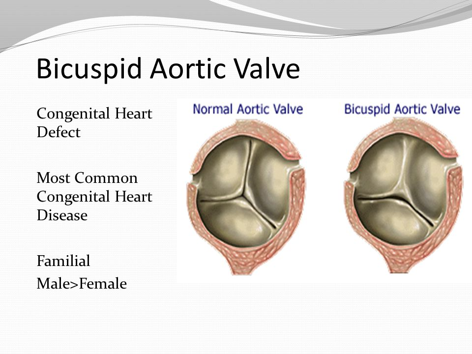 Bicuspid Aortic Valve Congenital Heart Defect