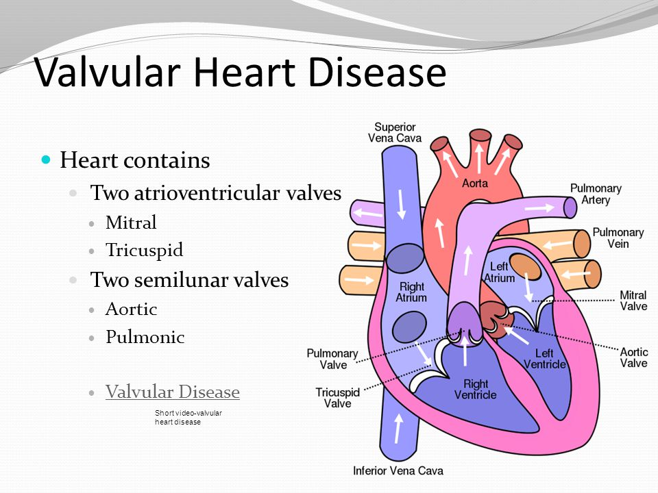 Cardiovascular: Valvular, Cardiomyopathy, Aneurysm and Cardiac ...