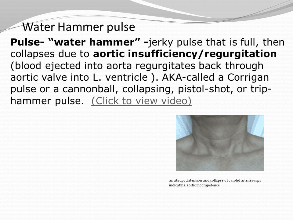 Water Hammer pulse