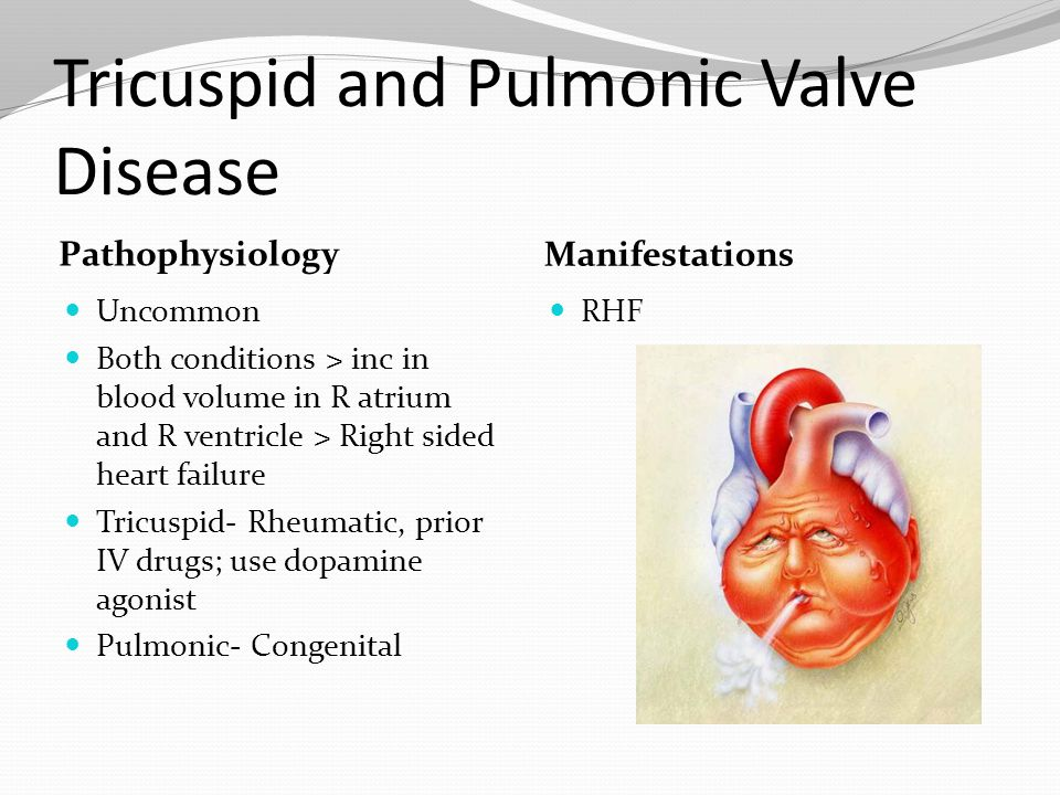 Tricuspid and Pulmonic Valve Disease