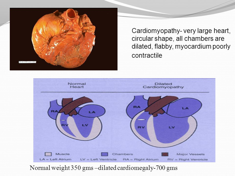 Cardiomyopathy- very large heart, circular shape, all chambers are dilated, flabby, myocardium poorly contractile