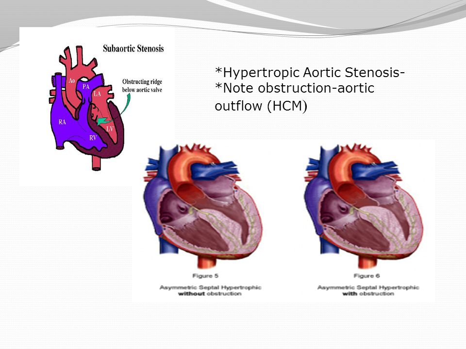 *Hypertropic Aortic Stenosis- *Note obstruction-aortic outflow (HCM)