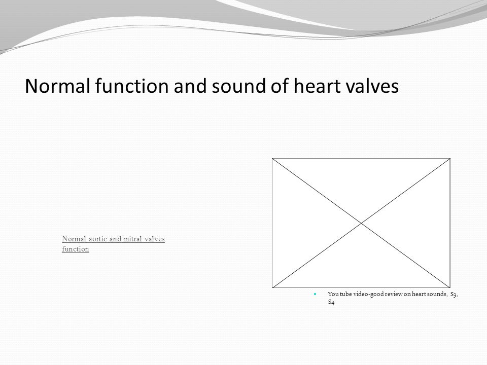 Normal function and sound of heart valves