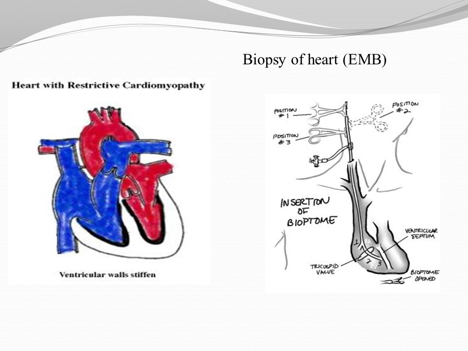 Biopsy of heart (EMB)