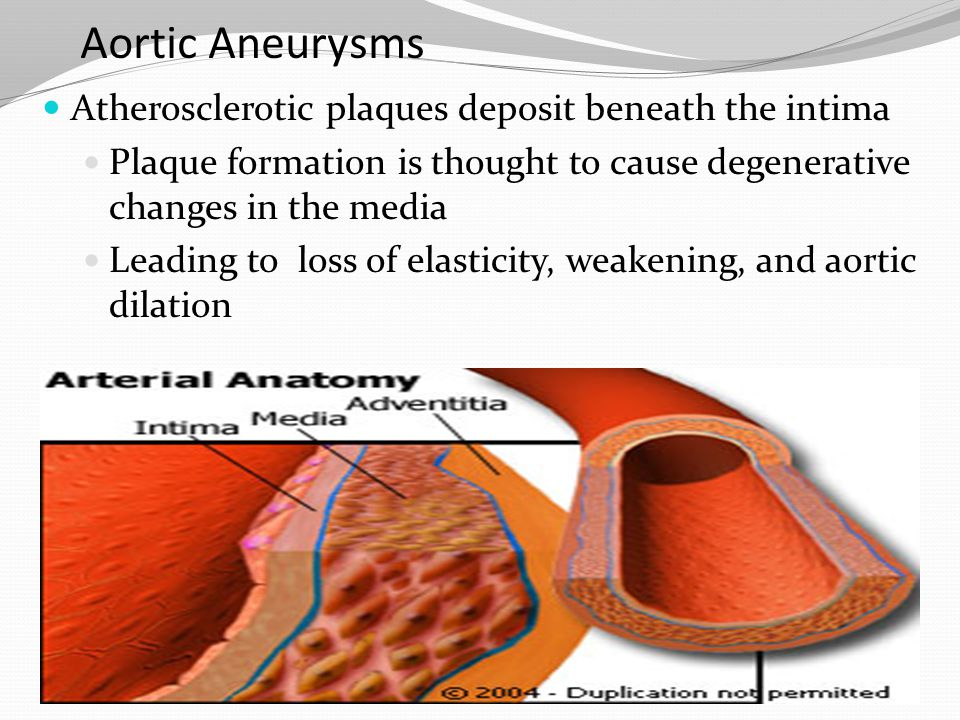 Aortic Aneurysms Atherosclerotic plaques deposit beneath the intima