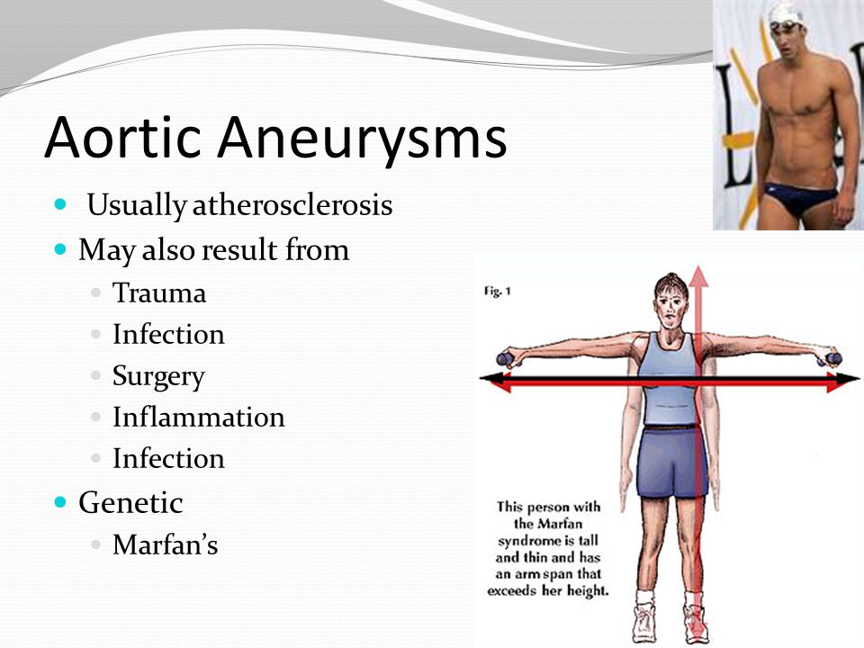 Aortic Aneurysms Usually atherosclerosis May also result from Genetic