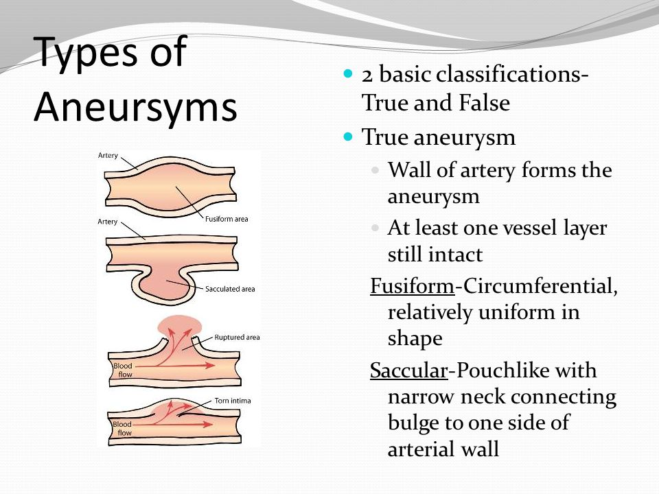Types of Aneursyms 2 basic classifications- True and False