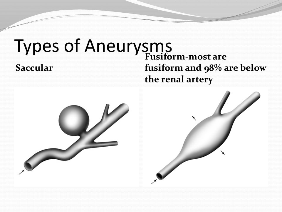 Types of Aneurysms Saccular Fusiform-most are fusiform and 98% are below the renal artery