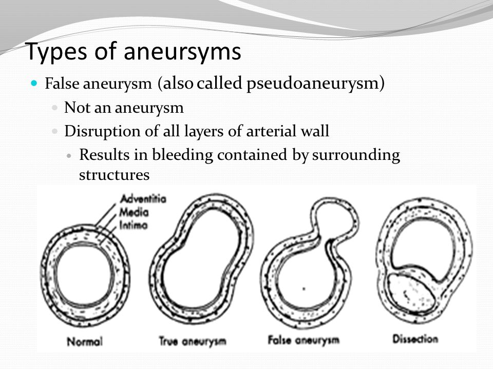 Types of aneursyms False aneurysm (also called pseudoaneurysm)